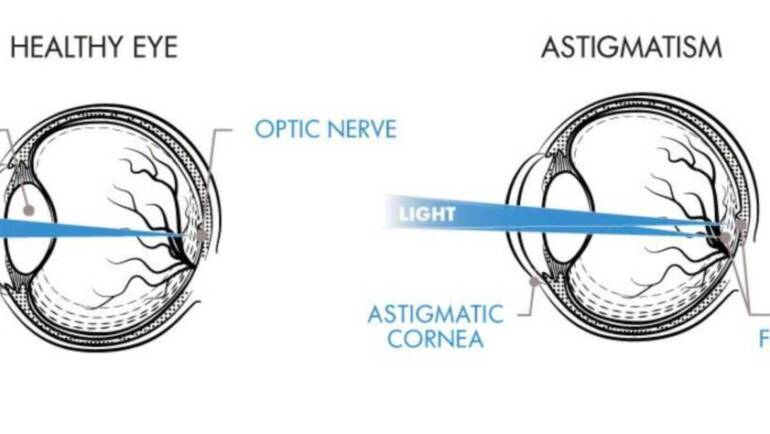 What Is Astigmatism